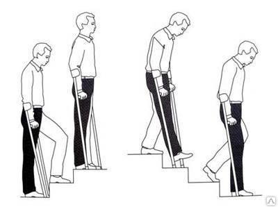 как правильно подниматься и спускаться по ступенькам на костылях
